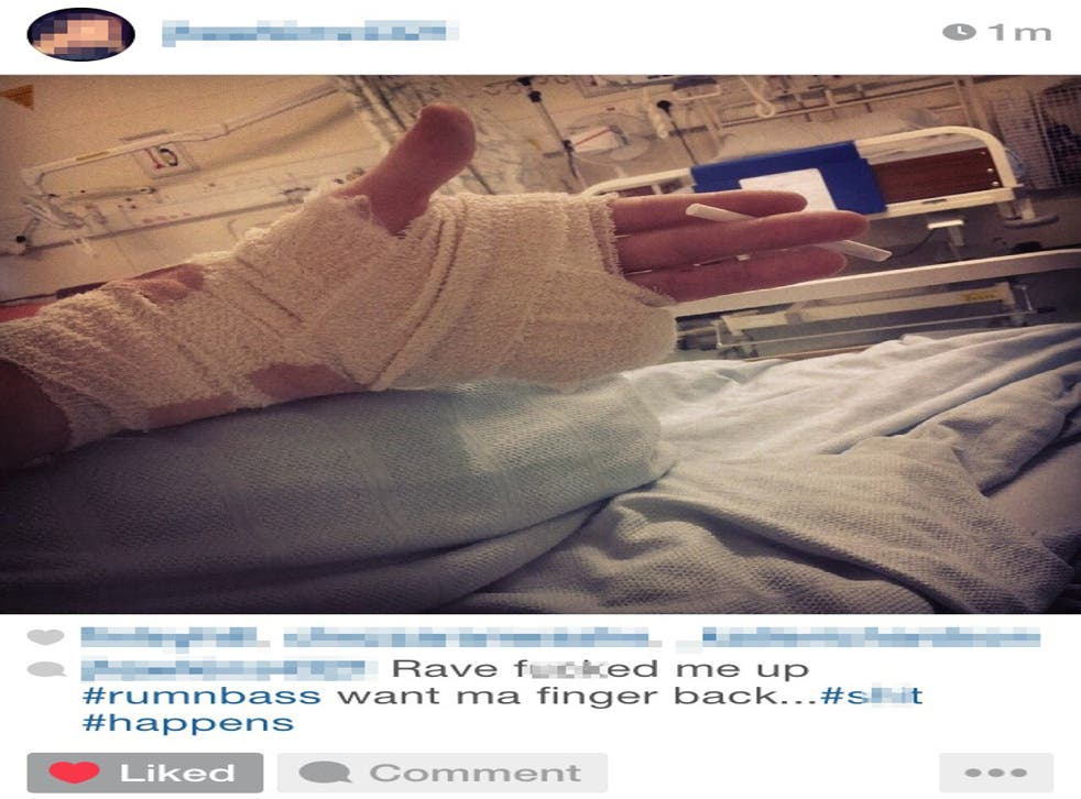 Josh posted a picture of his injury on Instagram