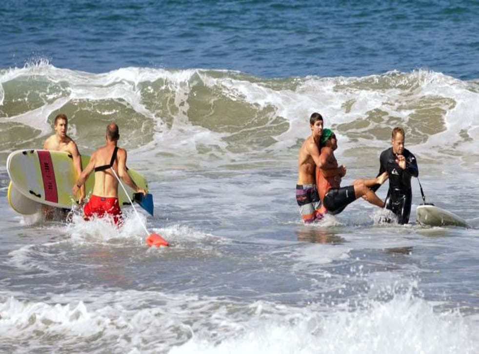 A man was injured in a shark attack off the Californian coast