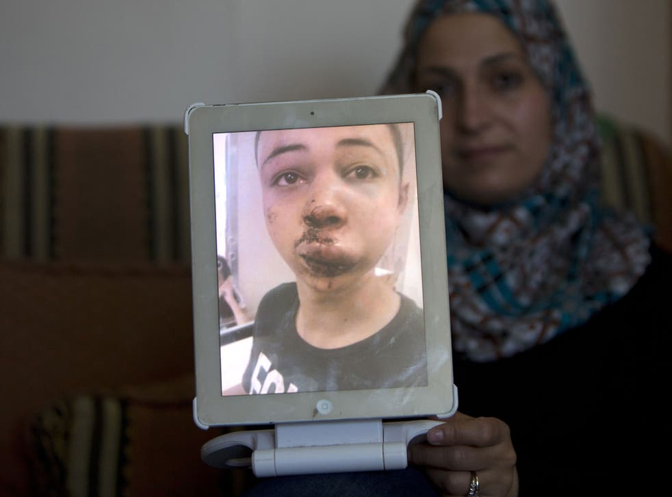 The mother of Tariq Abu Khdeir, who was allegedly beaten by Israeli police, holds up a picture of her son's swollen and bloodied face.
