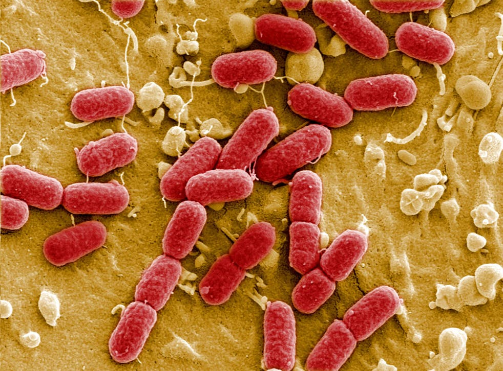 Antimicrobial resistance occurs when bacteria evolve genetically so that they cannot be killed by antibiotic drugs