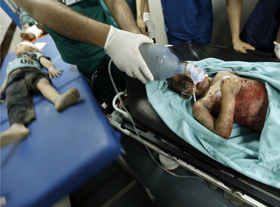 Palestinian children, wounded in an Israeli air strike on the al-Shati refugee camp, lie on stretchers as they are treated at the al-Shefa hospital in Gaza City, on August 4, 2014