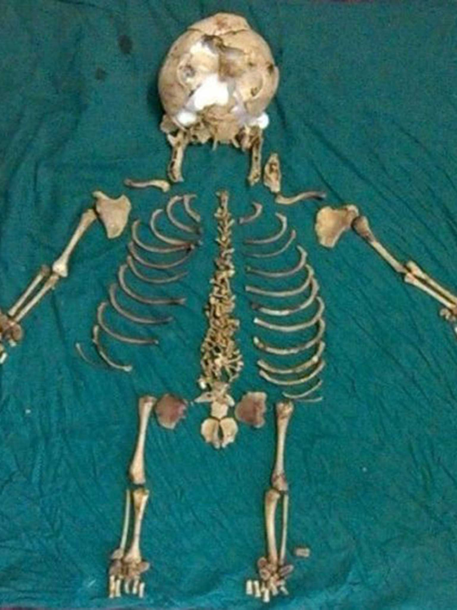 36 Year Old Skeleton Of Dead Baby Found Inside Indian Woman The