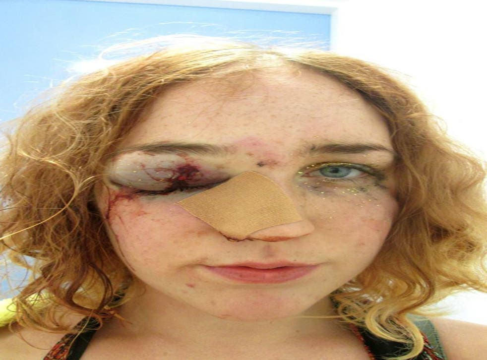 Mary Brandon posted this image to Facebook after she said she was hit in the face for telling a man to stop groping her