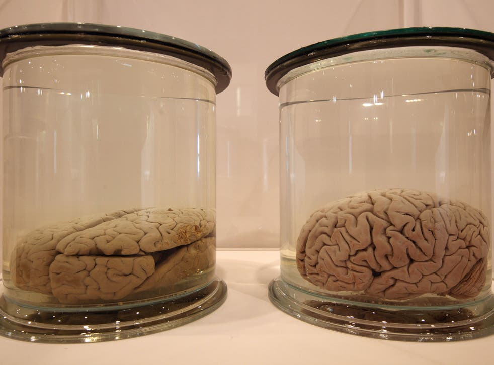 The brains were preserved in jars