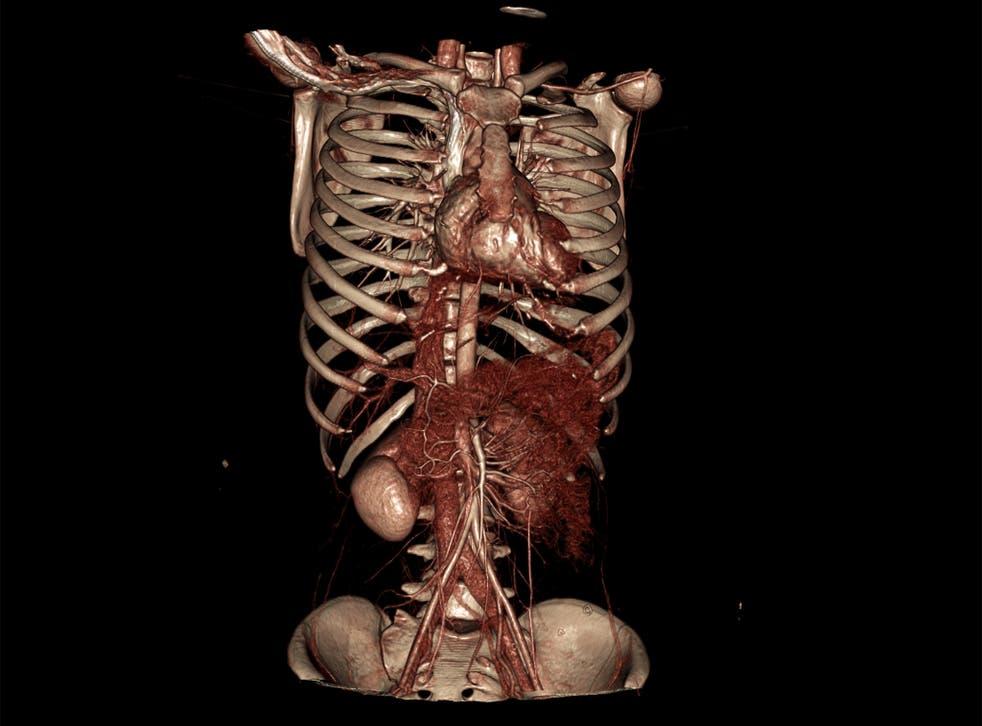 iGene can perform postmortems using detailed digital images