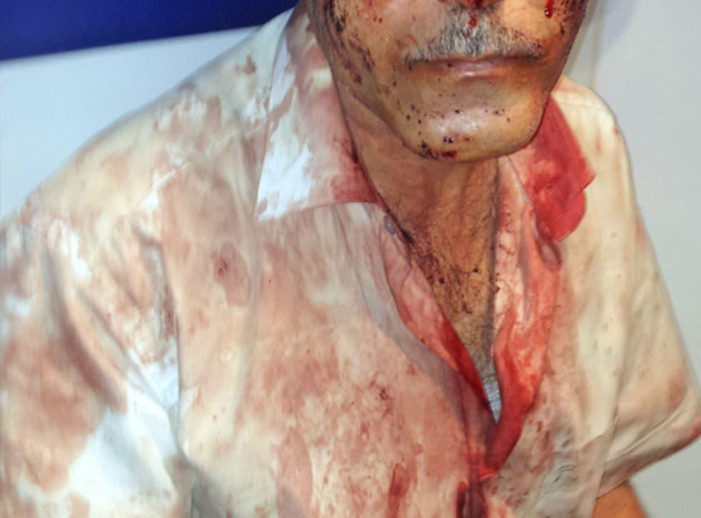 Ilgar Nasibov, a journalist and activist who works for Azerbaijan's NakchivanResource Centre, was badly beaten