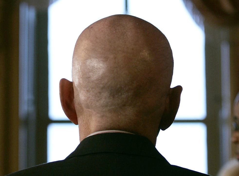 Scientists believe that have found a cure for baldness