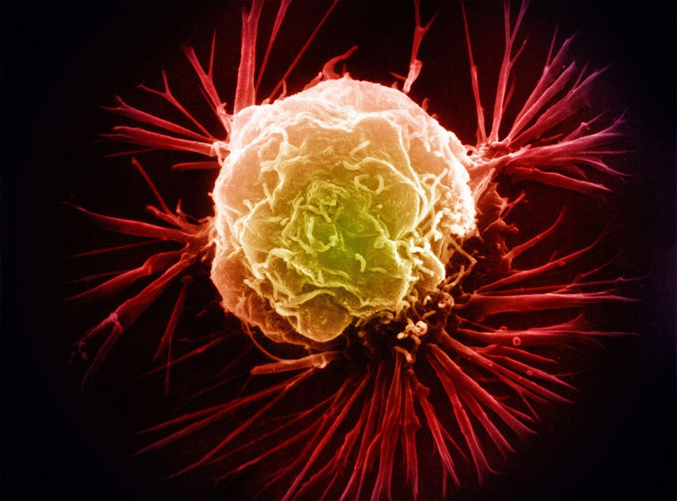 Among other factors, changes in the way we live our lives contribute to the increased possibility of developing cancer