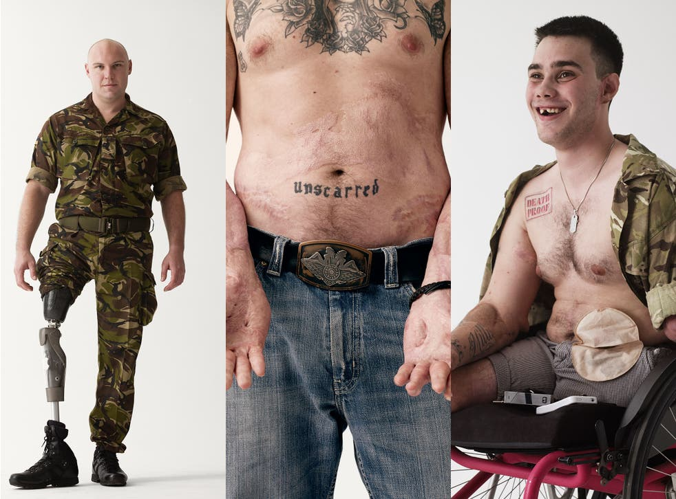 The musician Bryan Adams let us use his photos of wounded veterans as a visual representation of the hardships faced by soldiers both abroad and at home