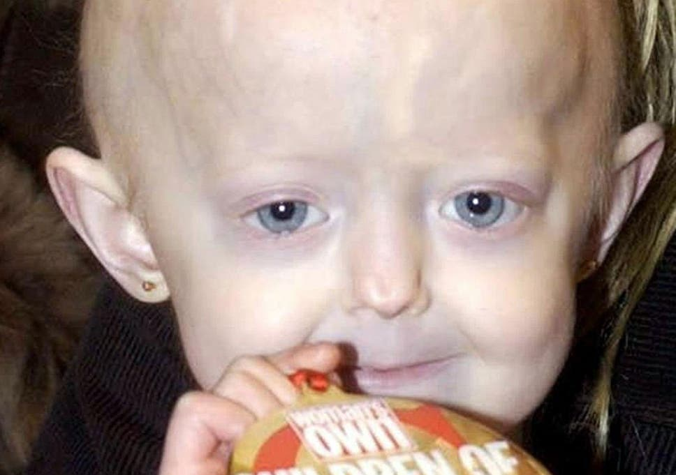 Hayley Okines: Progeria campaigner 'with the body of a 100