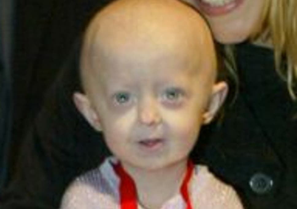 Hutchinson-Gilford Progeria Syndrome: What is it and how