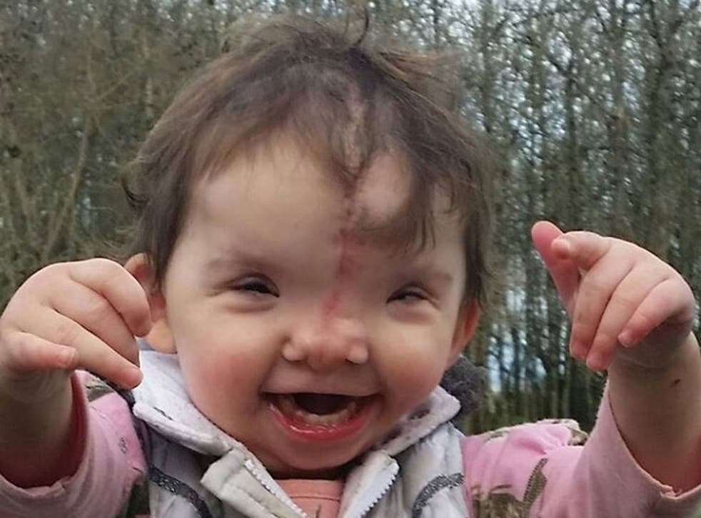 Violet Pietrok underwent major surgery to fuse the two sides of her face together.
