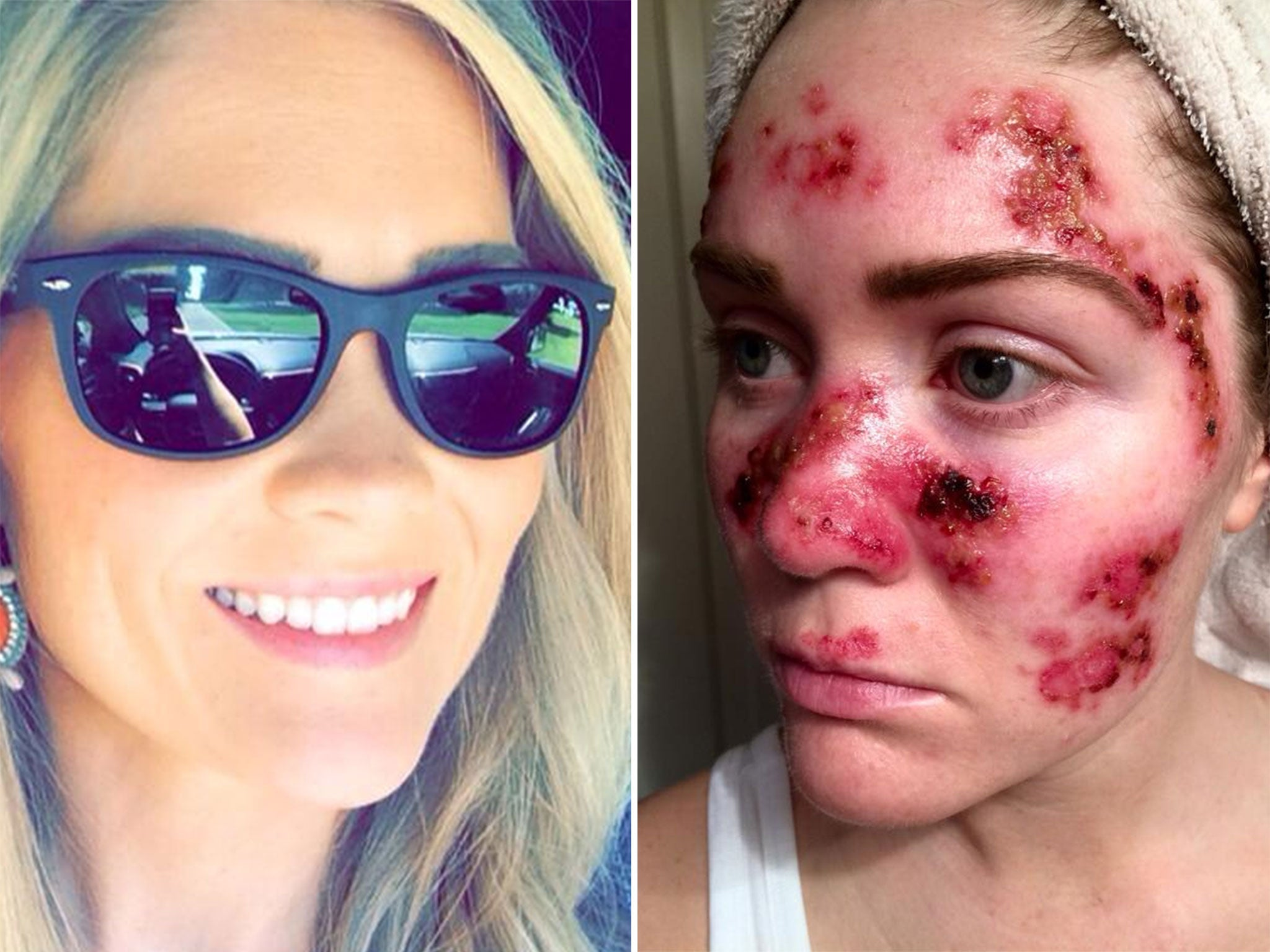 Skin Cancer Selfie Mother Tawny Willoughby Warns Against Dangers Of Sunbeds On Facebook The Independent The Independent