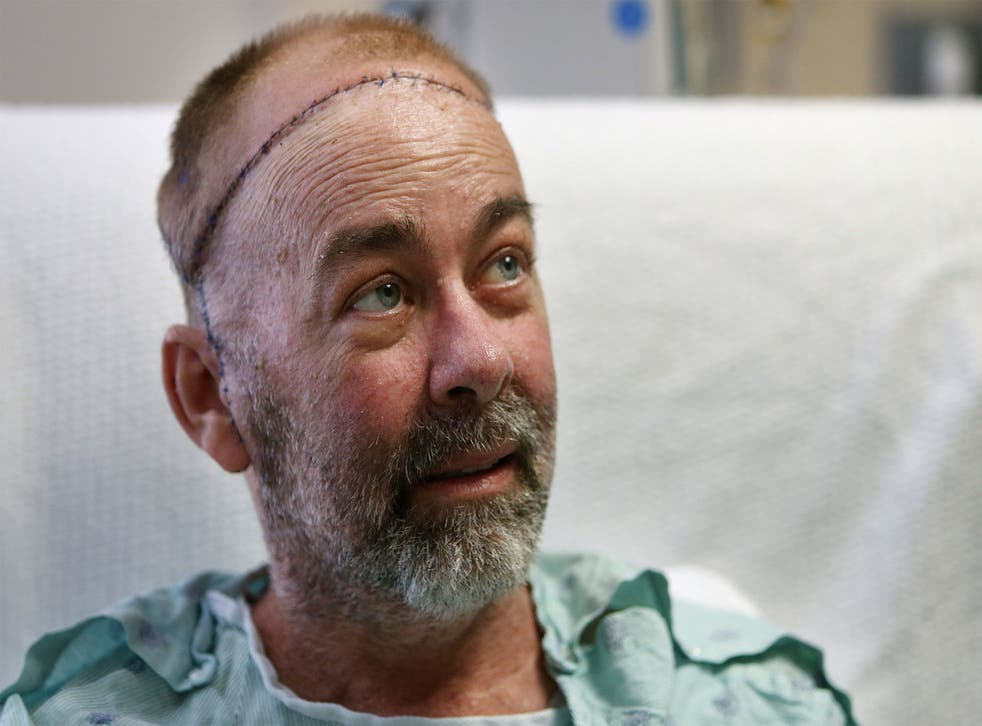 Jim Boysen was left with a large head wound from cancer treatment