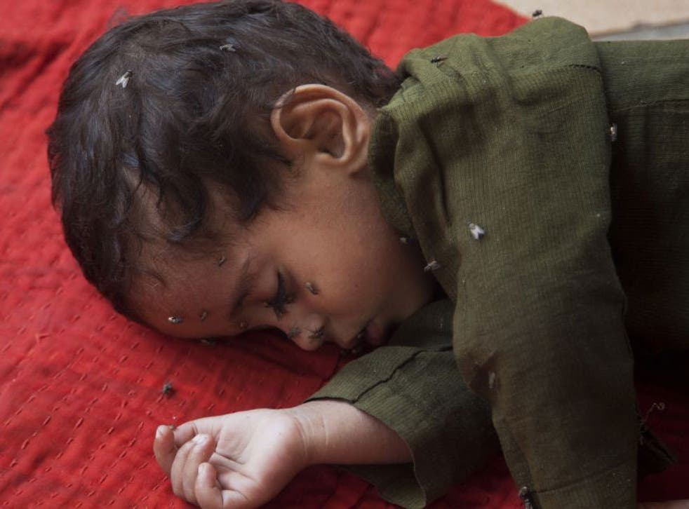 A child waiting for medical aid for suspected heatstroke at a children's hospital in Karachi
