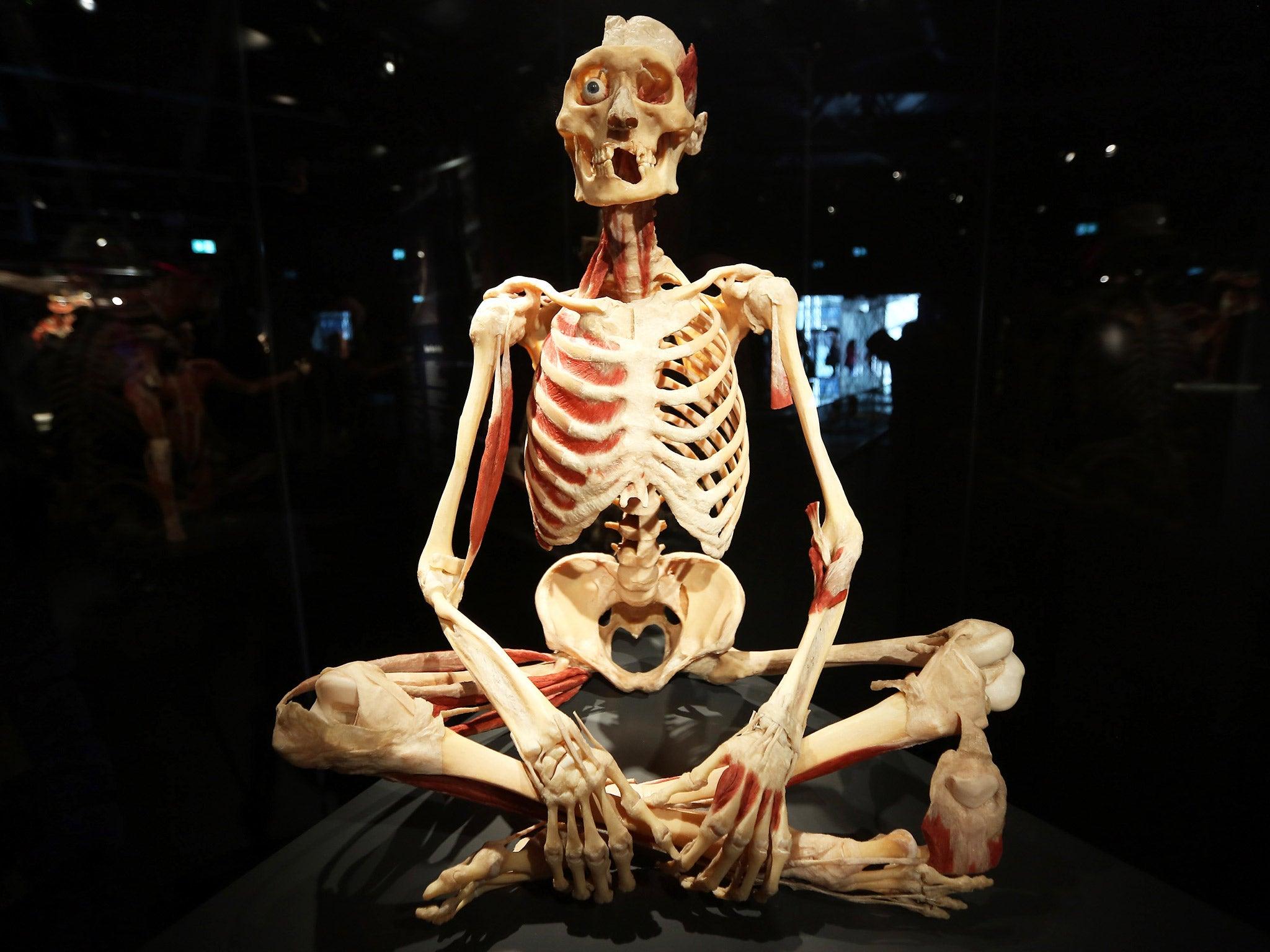 Bodyworlds Museum Dr Gunther Von Hagens Has Battled Legal Threats