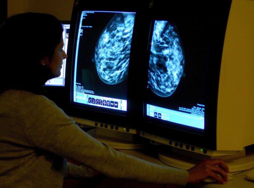 A consultant analysing a mammogram showing a woman's breast in order check for breast cancer