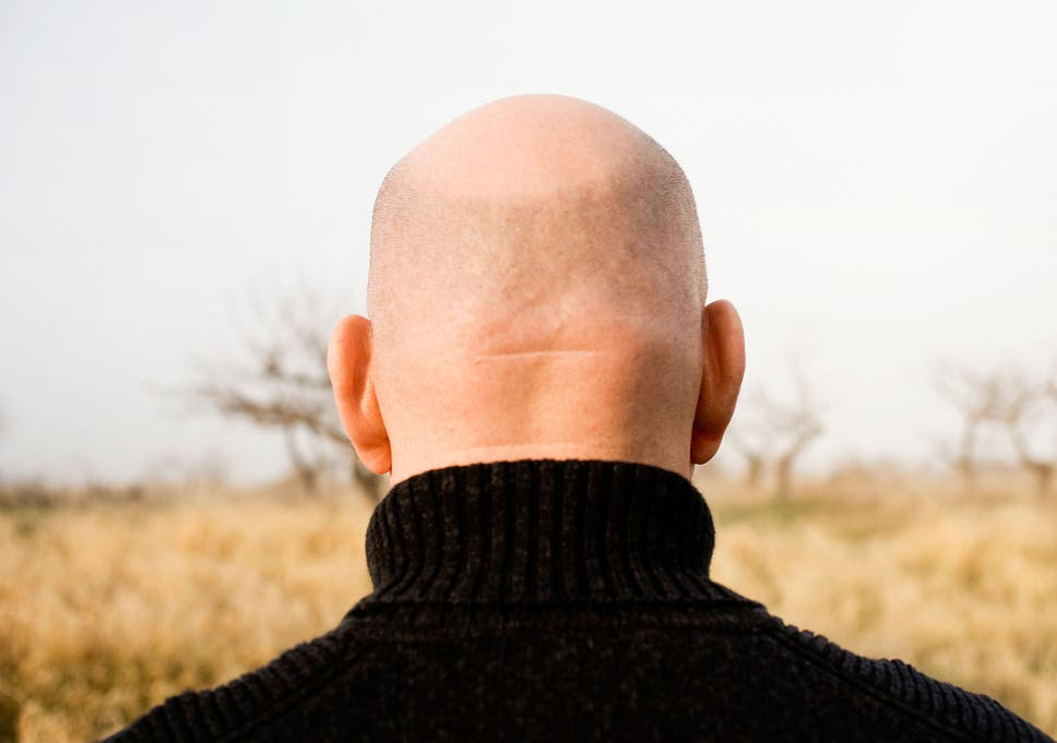 The bald truth: How author Nick Coleman's thinning hair made