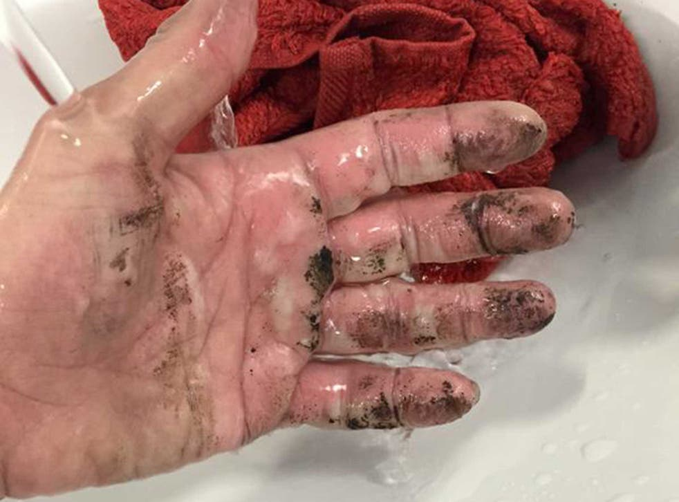 Katy Emslie's hand was seriously burnt by the EE charger