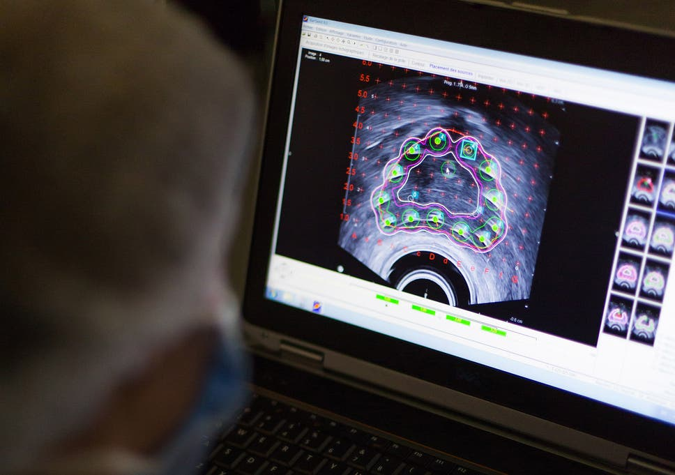Prostate cancer could actually be five different diseases