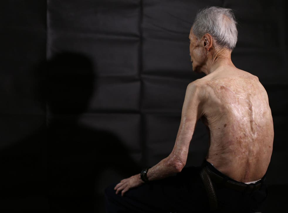 Sumiteru Taniguchi, 86, a survivor of the 1945 atomic bombing of Nagasaki, shows his back with scars of burns from the atomic bomb explosion