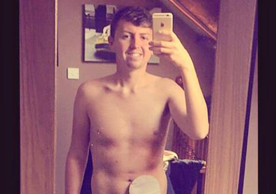 Students Colostomy Bag Selfie On Facebook Goes Viral In Its Aim To Help Crohns And Colitis Sufferers