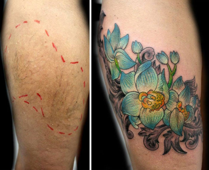 A tattoo artist is inking over the scars of victims of domestic ...