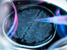 Simple reading test predicts chance of developing Alzheimer's