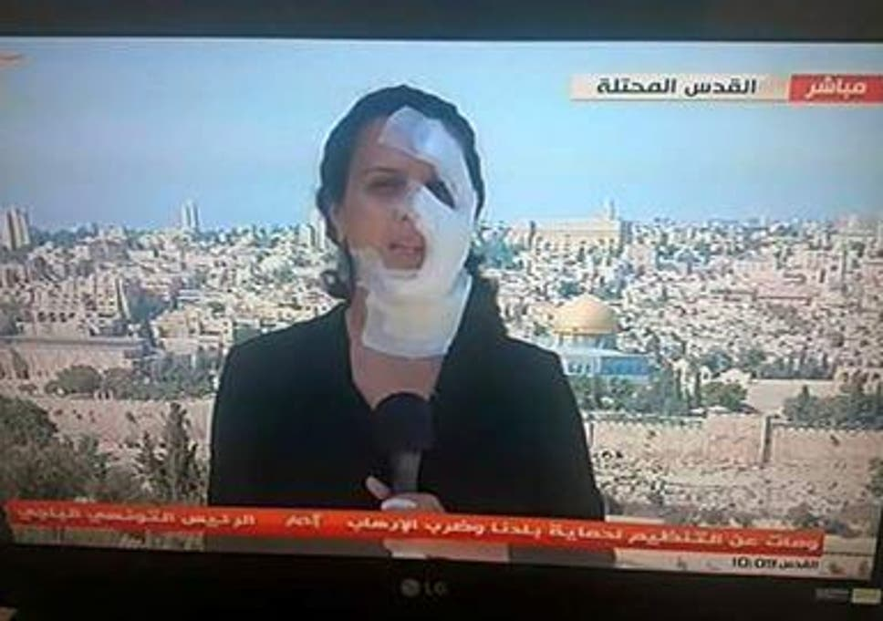 Journalist Hana Mahameed back on screen after being hit in
