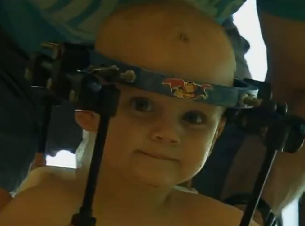 """Jaxon Taylor now wears a """"halo"""" to help his vertebrae fuse together."""