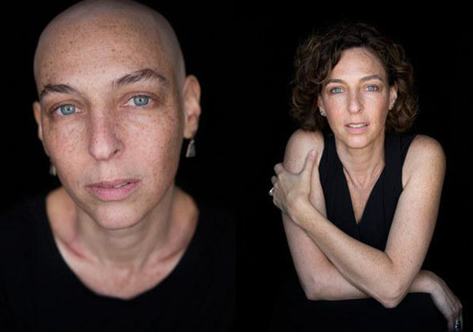 Inspiring Photo Shoot Captures Women Before And After Chemotherapy