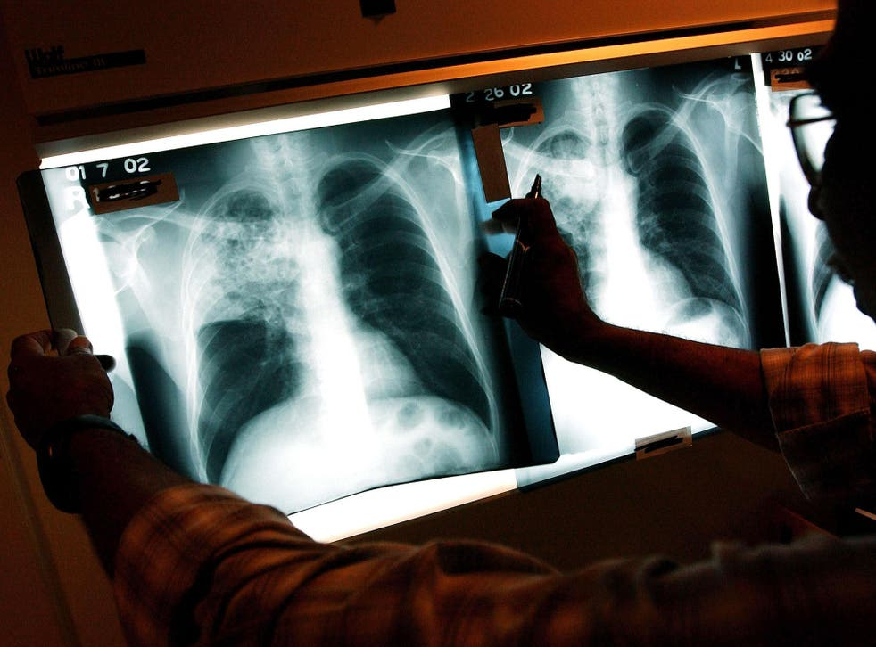 A shadow on the lung: A doctor examines X-rays of a TB patient