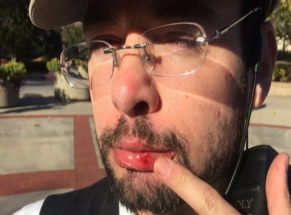 Morrell told a reporter 'a guy with dreadlocks, a black guy' punched him in the mouth after his comments