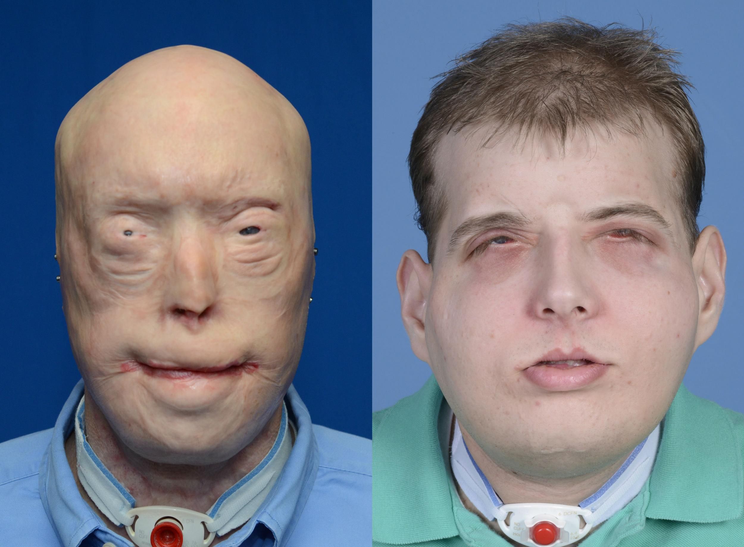 Woman Meets Man Who Has Her Dead Husbands Face After Transplant Theus Pie Game Read More