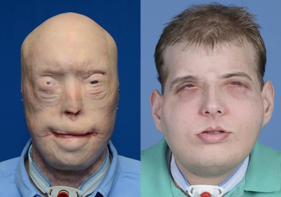 Meet the pioneering surgeon behind life-changing face