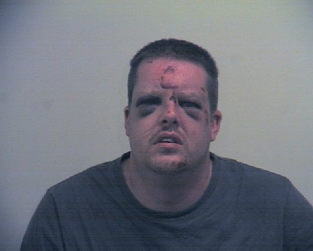 Sex attacker Johnathon Holmes left battered and bruised by young woman he dragged into bushes