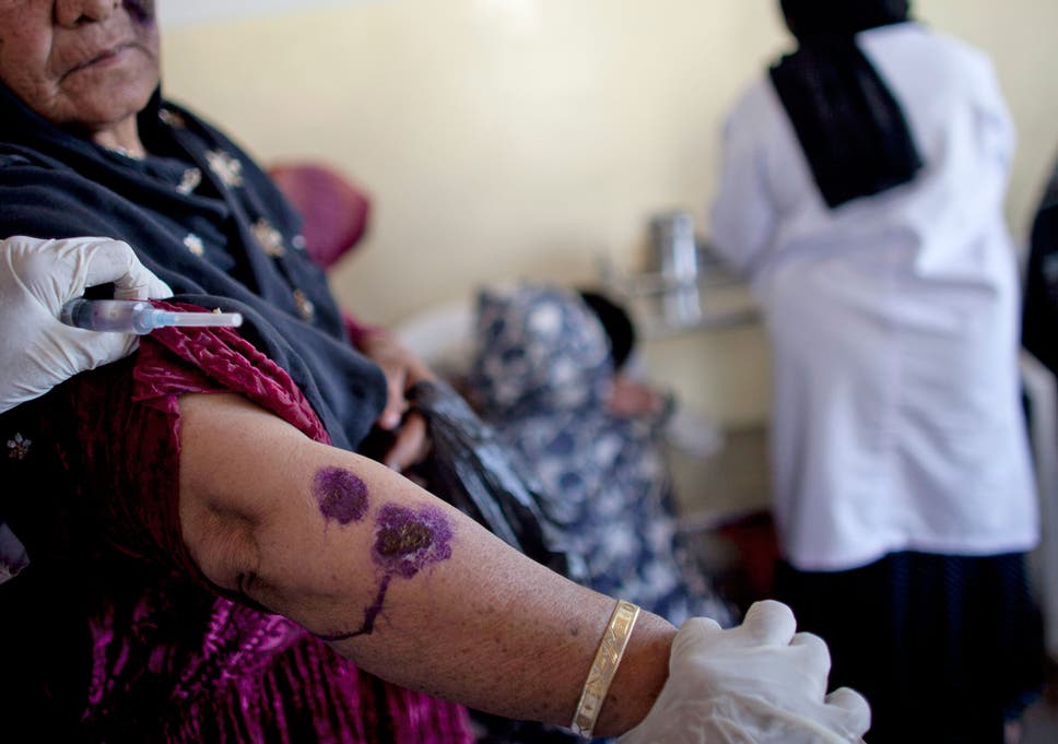 Leishmaniasis: What is the 'flesh-eating' disease that's spreading across  Syria?