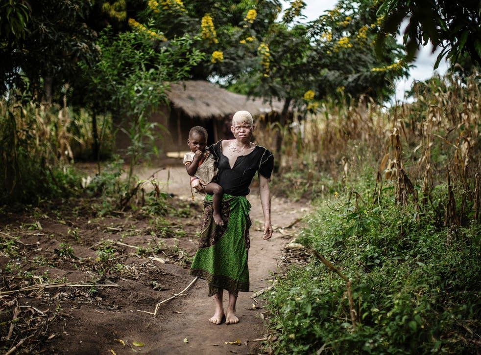 A young albino woman in Malawi, where people with albinism are often stigmatised