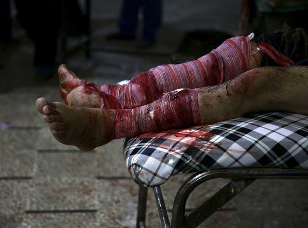 An injured man lies in a field hospital in Douma, a neighbourhood of Damascus