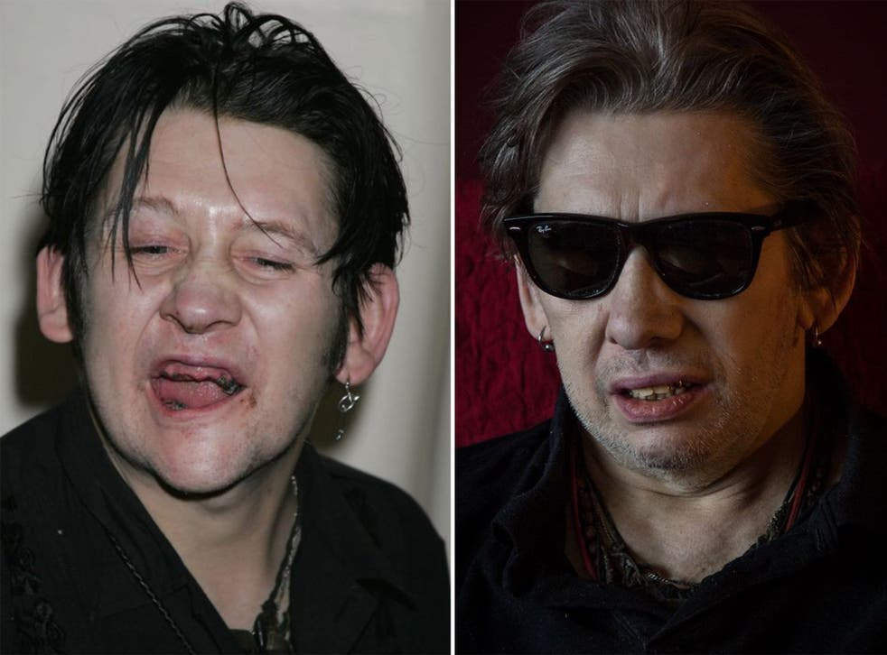 Shane MacGowan in 2005 (left) and now