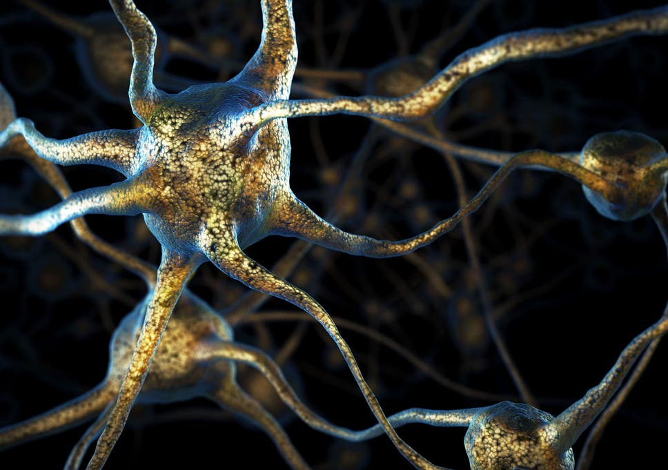 Extreme Pruning Of The Brain Can Bring About Symptoms Schizophrenia Which