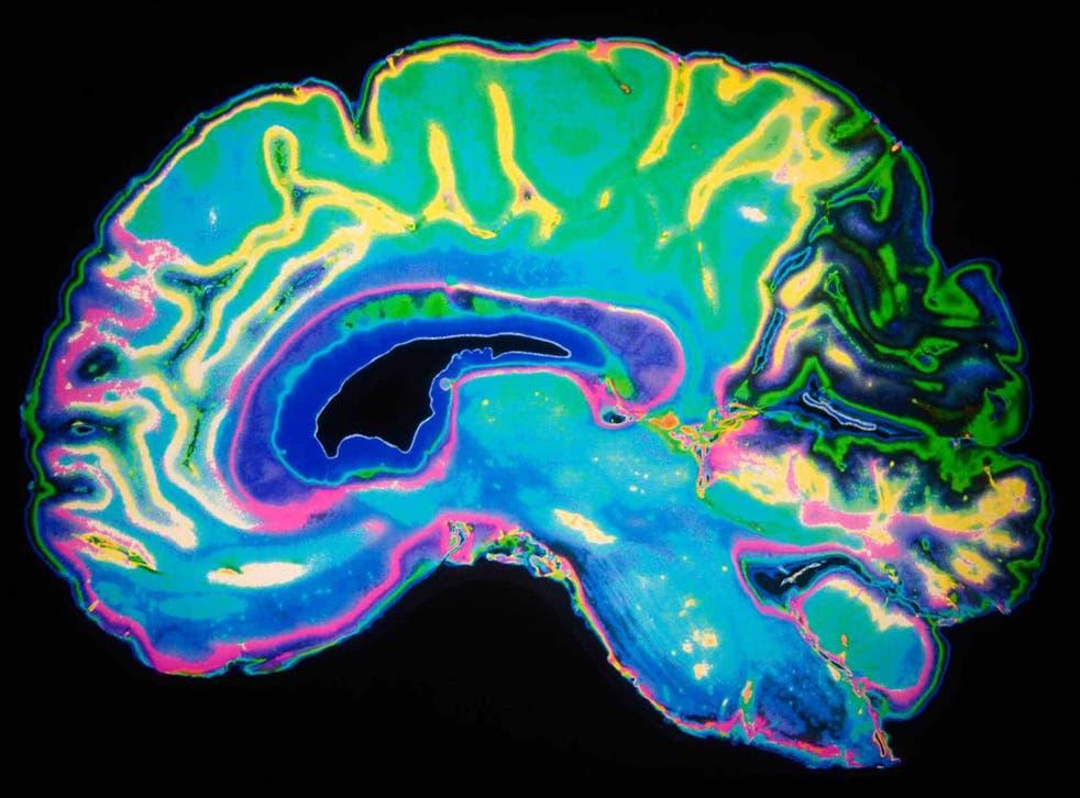 A neuroimage of a dementia sufferer (file pic)