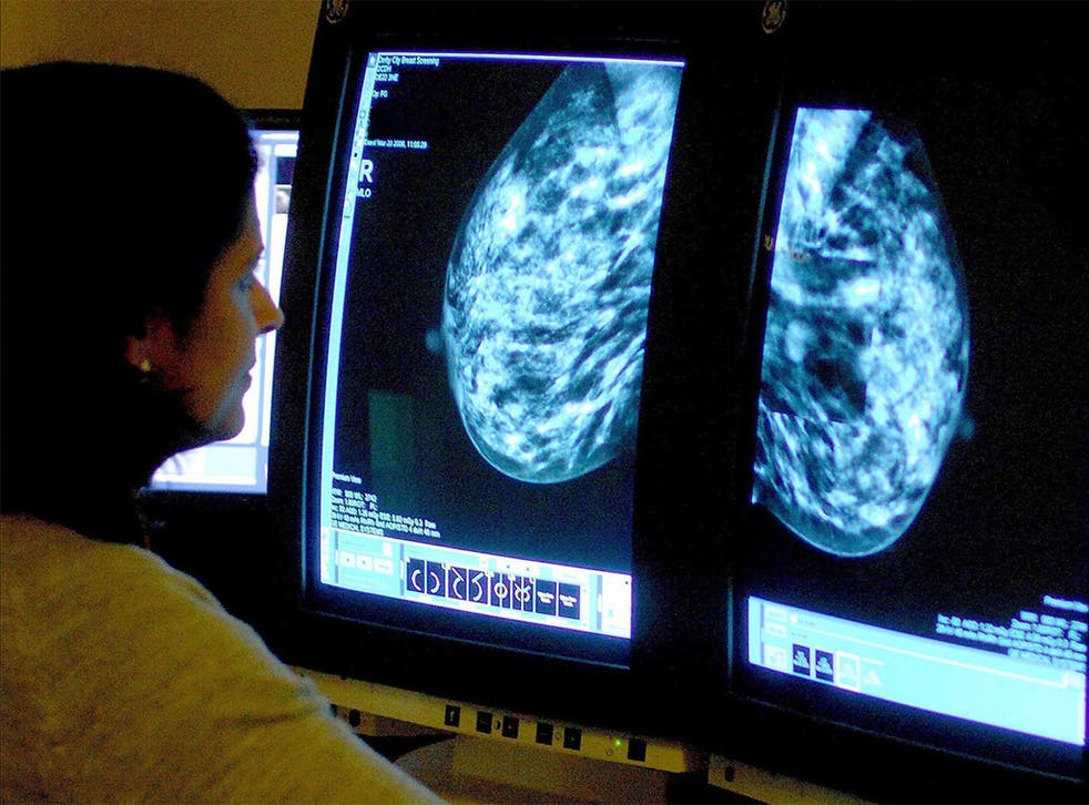 A consultant analyses a mammogram. Cancer screening has never been shown to save lives in the way that is often claimed, experts have argued