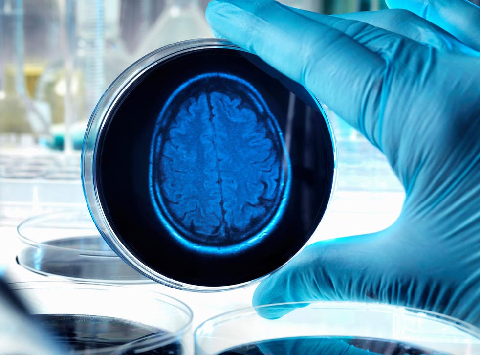 Drugs that curb inflammation in the brain halt memory loss, according to a new study