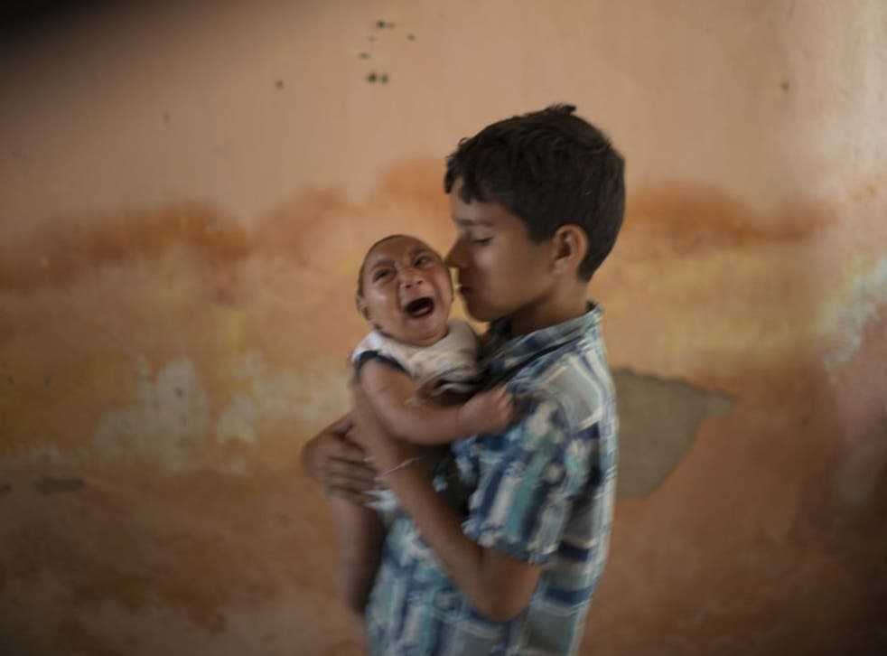 A baby with microcephaly cries in Brazil