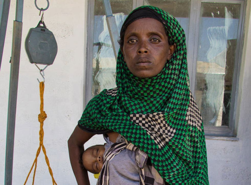A mother seeks treatment for her malnourished baby at Save the Children's Mender centre