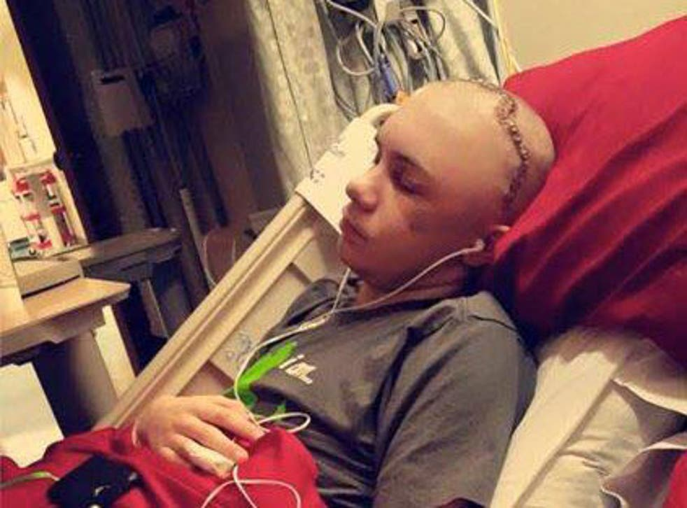 Fourteen-year-old Skylar Fish suffered severe head injuries after his attempt at the challenge went awry