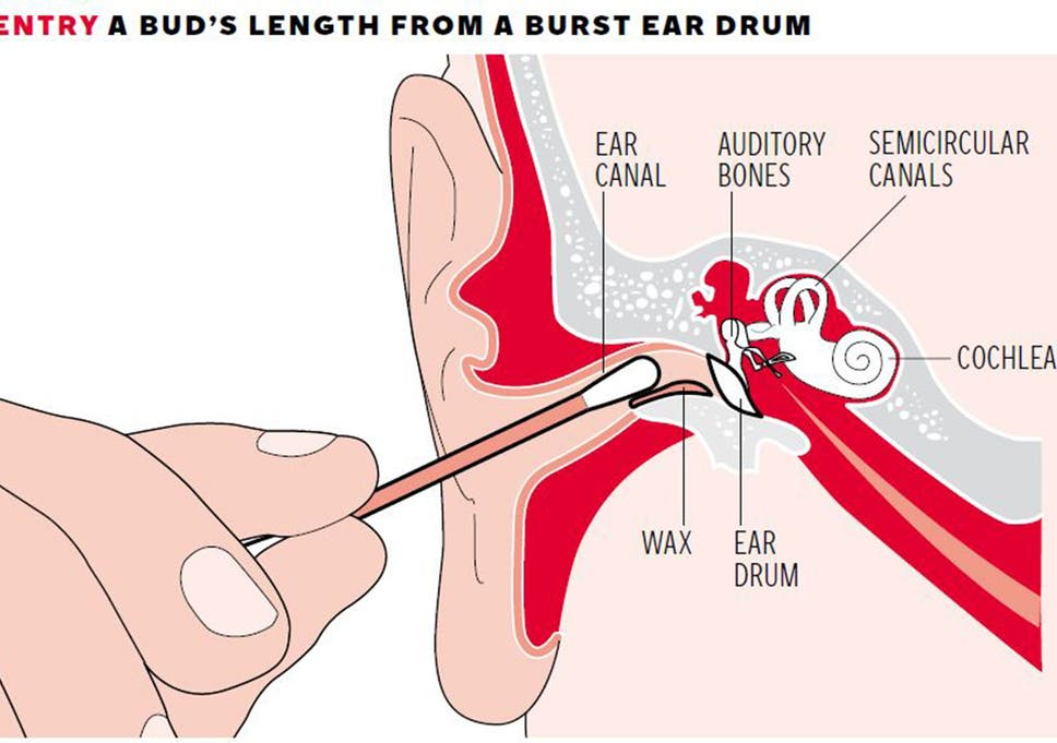 cotton bud in ear why can\u0027t we resist the temptation despite thethe ear canal leads to a number of sensitive bones and organs which can be harmed