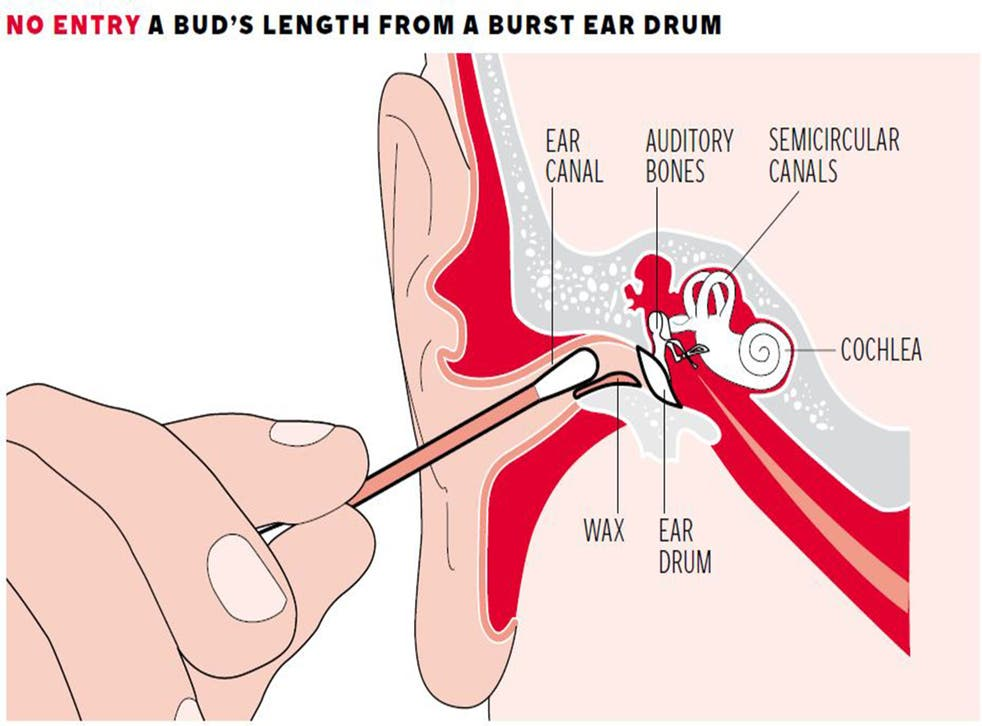 The ear canal leads to a number of sensitive bones and organs which can be harmed by interference