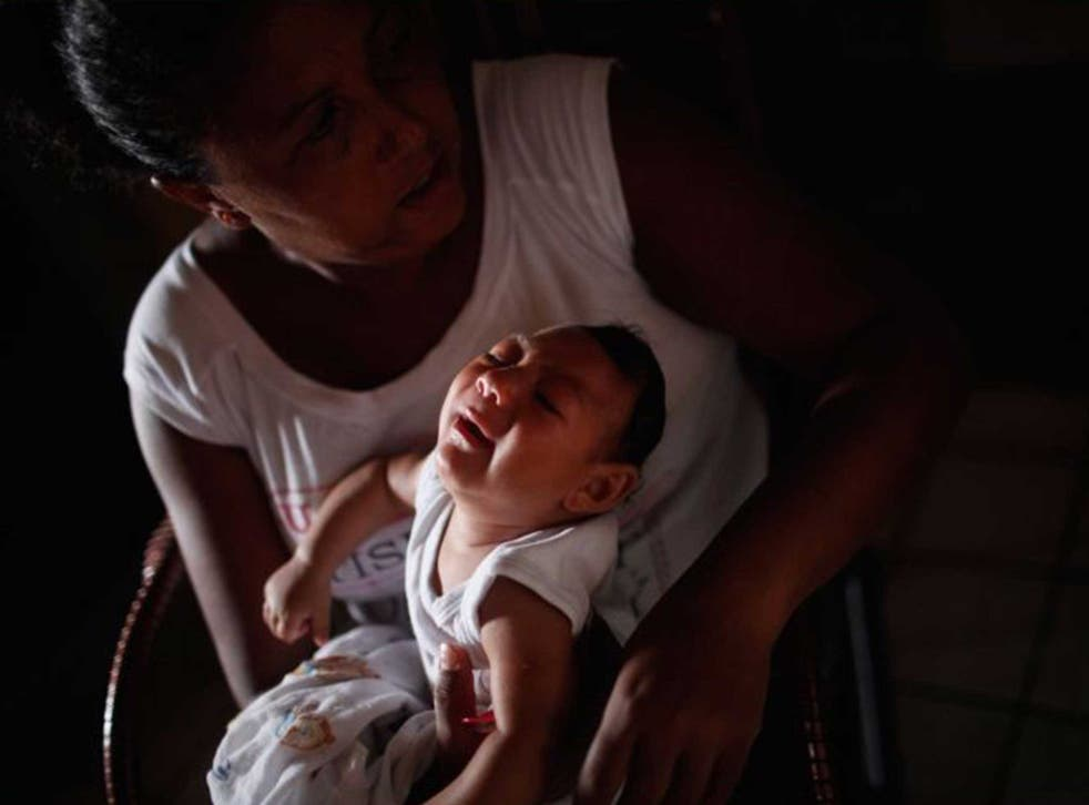 A baby born with microcephaly, in Recife, Brazil. The condition has been linked to the Zika virus, transmitted by mosquitoes